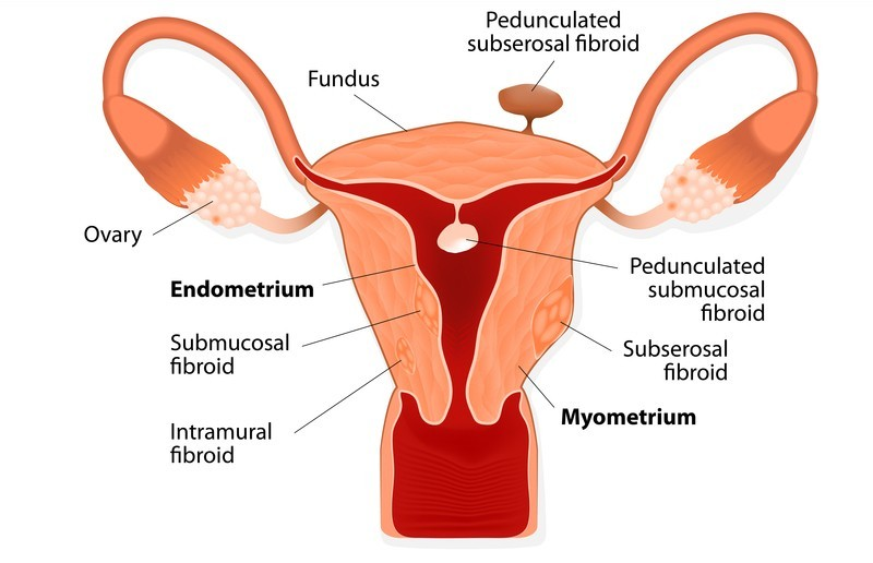 Uterine Fibroid Tumors - Natural Alternatives - Energetic