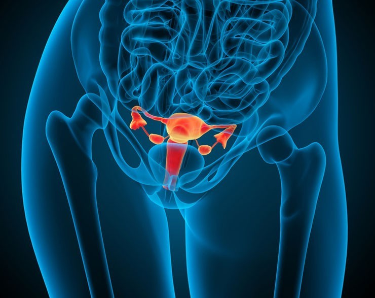 Fibroid Tumor Support